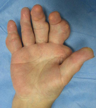 uric acid levels in gout meat low in uric acid most effective gout treatment
