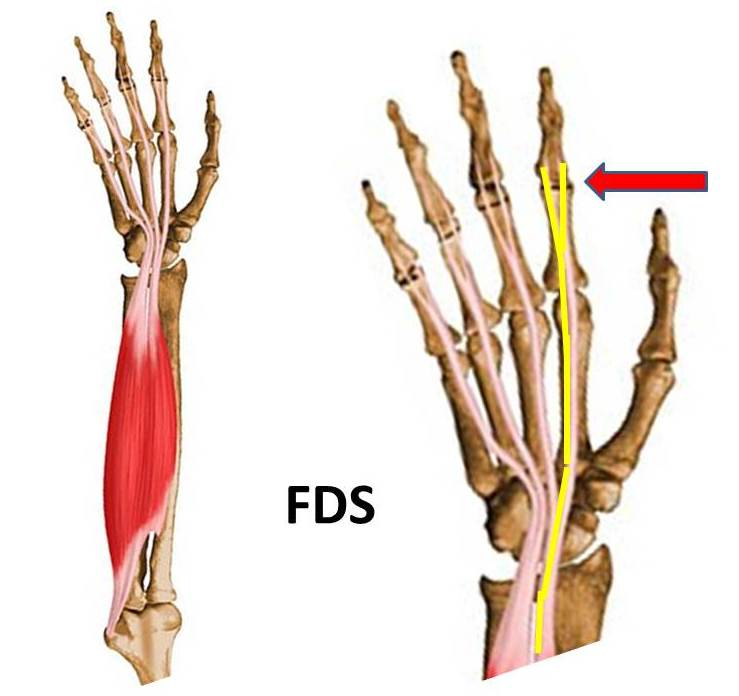 Flexor Tendon Injuries