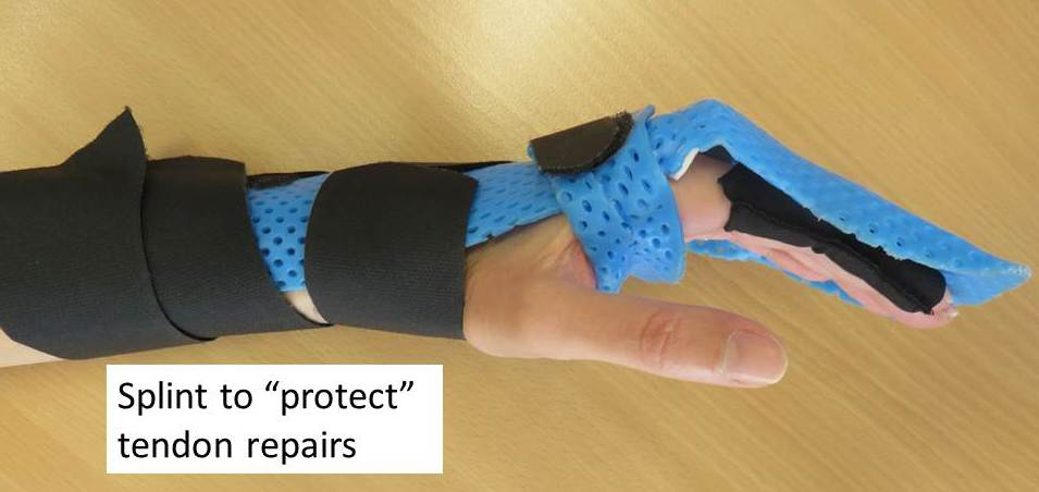 Download image Flexor Tendon Injury Splint PC, Android, iPhone and ...