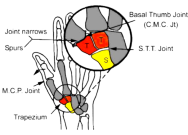 Hand Joint Diagram Cm Wiring Library