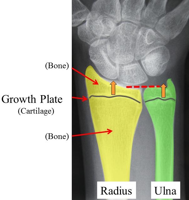 Children's Wrist Fractures