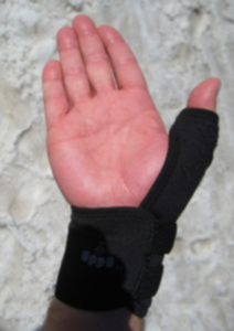 SKI POLE THUMB INJURY - LWW Journals - Beginning