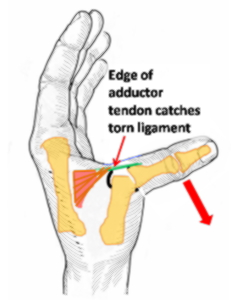 Thumb in abductor the ruptured muscle