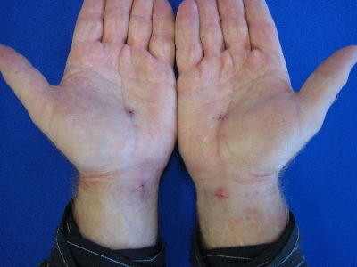 Post Carpal Tunnel Release Wound instructions