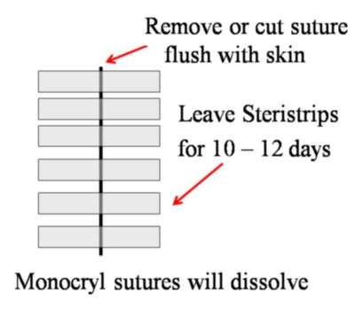 Wounds Closed with Subcut Monocryl